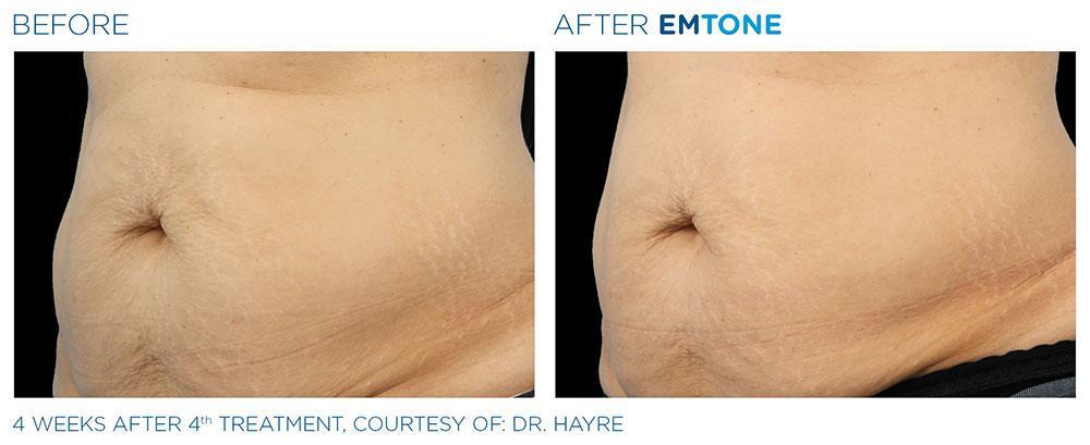 Emtone PIC Ba-card-female-abdomen-011 ENUS100
